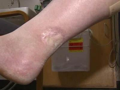 Owen Montgomery said doctors discovered he was suffering from melanoma that was spreading up his leg.