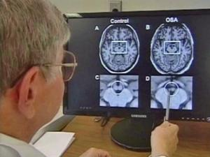 Mammary bodies in the brain store memories, but in sleep-apnea patients, that area of the brain shrinks significantly. Constant oxygen might be the cause.