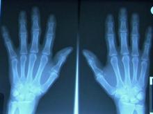 UNC researchers study osteoarthritis links