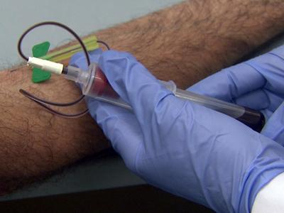 Doctors studied a single blood test method to identify plaque build up.