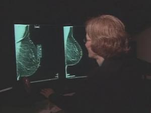 Computer-aided detection is used for about a third of mammograms in the U.S., and doctors expect more hospitals to start using the system as more mammogram centers switch from film to digital images.