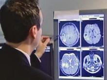 Brain scan could help cancer patients