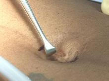 Surgery uses 'natural scar'