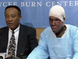 Eric Louis was burned during a huge earthquake in Haiti in January. He is receiving treatment at at North Carolina Jaycee Burn Center at UNC Hospitals in Chapel Hill.