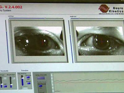 State of the art equipment in the lab tests the brain's balance system using a combination of information from the eyes, the muscles and the inner ear.