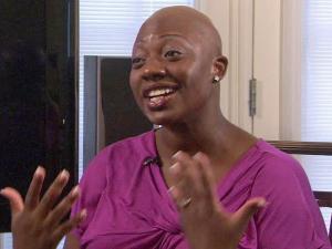 Sandra Dubose has Alopecia.