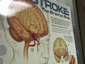 When a person enters the UNC Hospitals Stroke Center, the first thing they see is a poster about stroke symptoms and causes.