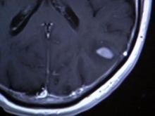 Vaccine could help brain cancer patients live longer