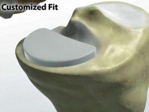Partial knee replacement using a new robotic, resurfacing technique is ideal for young people with osteoarthritic knee damage.