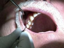 Dental health important for diabetics
