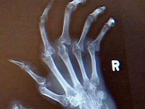 Swollen hands with eroding bone around the joints are common in the early stages of rheumatoid arthritis.