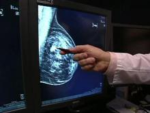 Breast cancer patients can opt for less-invasive surgery