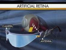 Artificial retina gives sight to the blind
