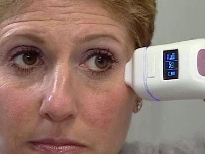A home laser treatment promises to rejuvenate people's skin and take years off their faces, at a smaller cost than treatments at a doctor's office.