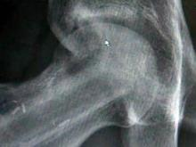 Hip joint X-ray
