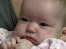 Duke surgically corrects infant skull deformity