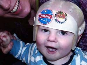 Colt Jackson was born with craniosynostosis.