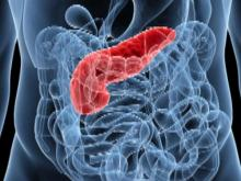 Pancreatic cancer tough to detect, cure