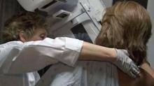 IMAGE: Doctors recommend annual mammograms despite false positives