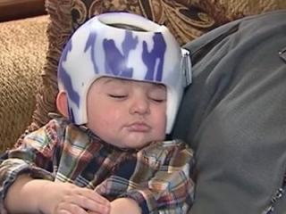 Four-month-old Vincent Antenucci has to wear a helmet to try to reshape his flat head.