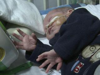 Raiden Jewett got a breathing tube via robotic surgery.