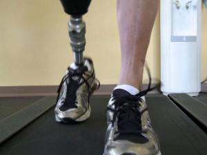 A new procedure being performed at Rex Healthcare in Garner allows patients to keep limbs that would otherwise have to be amputated.