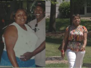 Priscilla Davis underwent a weight loss procedure in April of 2007, and since then she's seen a drastic change in her overall health.