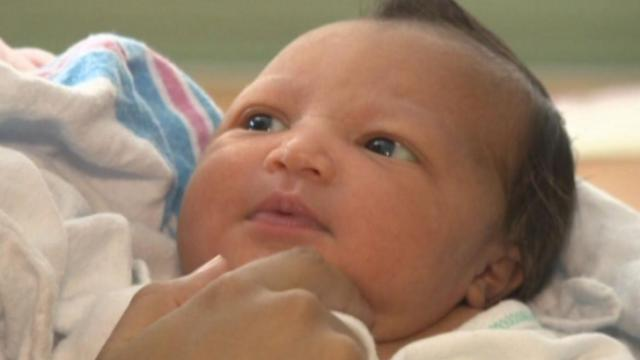 Almost one in three births in the U.S. are now delivered by c-section.
