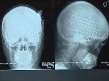 Brain surgery helps some epilepsy patients