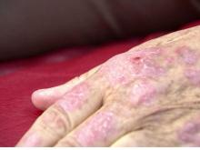Easy treatment for psoriasis also shows heart health benefits