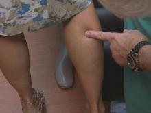 New alternative to surgery for varicose veins