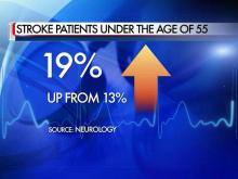 Stroke rate rising for those under 50