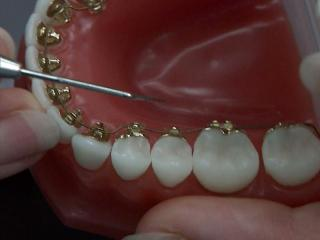 Lingual braces are placed on the back of teeth to hide wires and brackets.