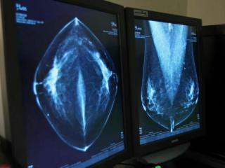 A new study from Duke University shows that women with early stages of breast cancer who undergo a lumpectomy coupled with radiation treatment have a higher survival rate than those who have mastectomies.