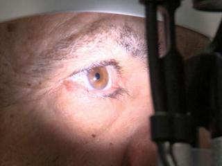 Affecting one in five people over age 70, macular degeneration is the most common cause of vision loss, but until recently, there was no drug available to combat it. Newly developed eye injections, however, are allowing patients with the most severe form of the disease to maintain their sight longer.