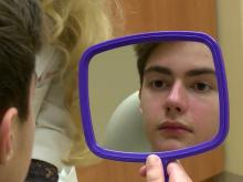 New guidelines improve acne treatment