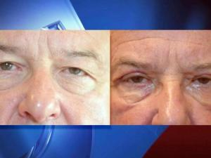 Although many men never consider visiting plastic surgeons for cosmetic reasons, more are turning to eye lifts to help alleviate vision problems caused by sagging skin that worsens with age.