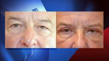 IMAGE: Eye lifts more than cosmetic procedure for some men