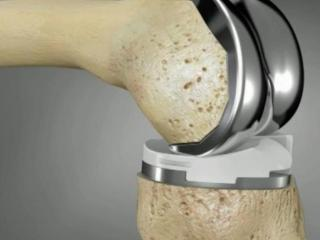 A new 3D approach offers knee replacement implants tailored to a patient's specific anatomy