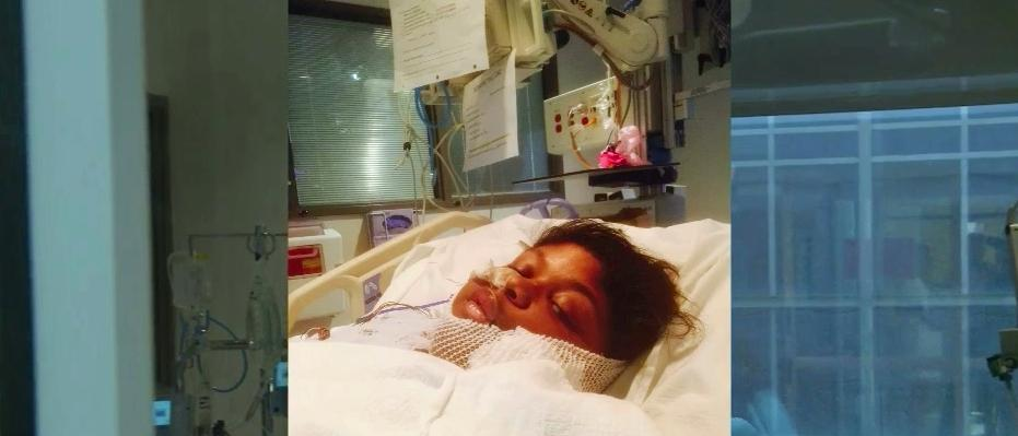 Teen lucky to be alive after oral surgery results in sepsis