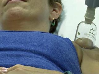 Cupping is not new to the practitioners and patients at Duke Integrative Medicine, where it is a drug-free option for weekend warriors.