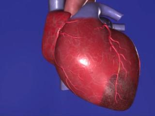 More than a million Americans have heart attacks each year, but experts say there are steps to take to greatly reduce the chance of one occurring.