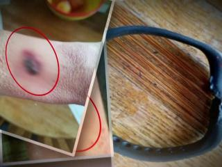 Woman says Fitbit exploded, caused 2nd degree burns