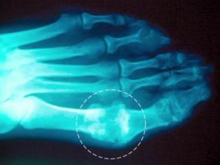 Lose excess weight, drink plenty of water to ward off gout