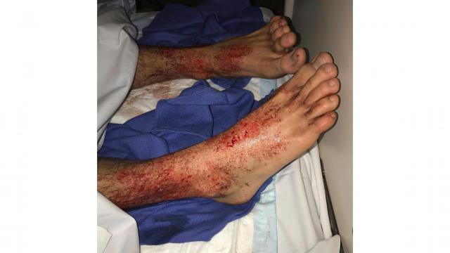 ***This image is for use with this specific article only*** Sam Kanizay's feet were covered in what appeared to be thousands of bleeding pinholes.