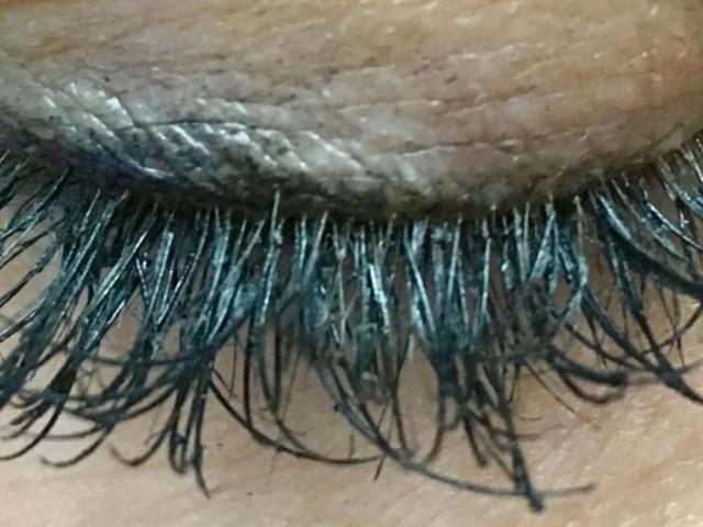 Fake Eyelashes Can Cause Bad Reactions Infections Wral