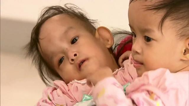 Conjoined Bhutanese twins separated after six-hour surgery