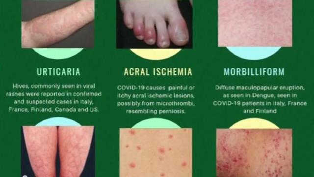 Certain Skin Rashes Emerge As Possible Coronavirus Symptom Wral Com