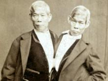 Davidson woman traces lineage to famous conjoined twins