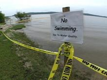 No swimming! The Vista Point Campground is closed because of an outbreak of shigellosis. Officials suspect contamination in the water and the soil may have made several children who sick after swimming in the water. (WRAL-TV5 News)